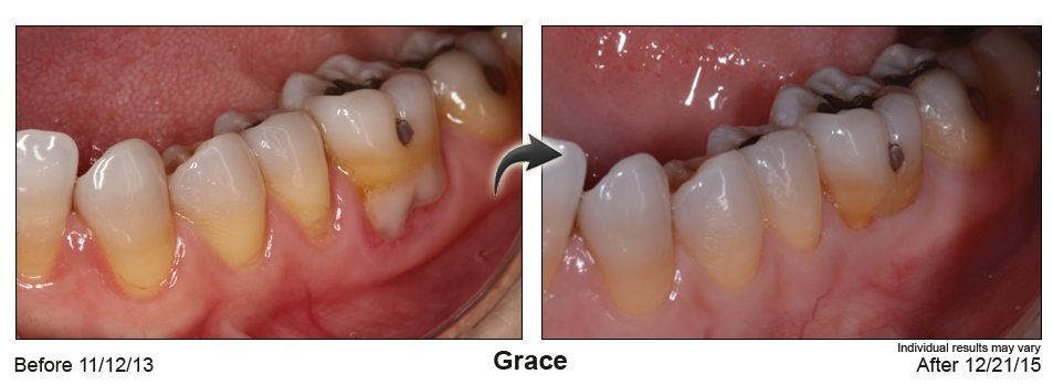 fix gum recession Issaquah