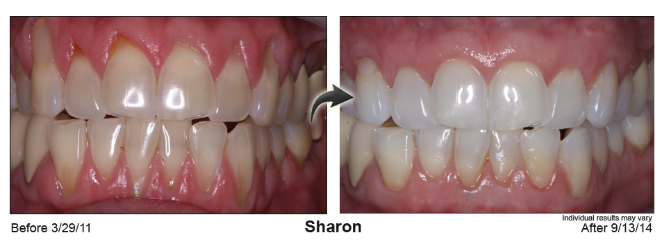 gum recession treatment Issaquah